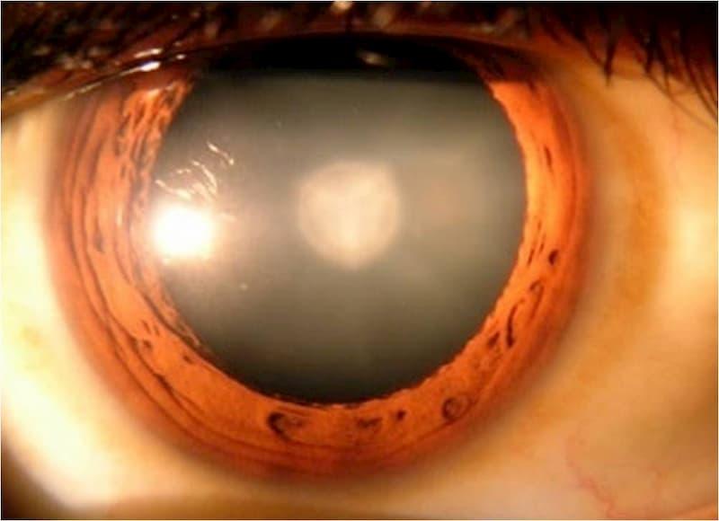 Buscan hacer conciencia sobre la prevención de enfermedades que causan ceguera